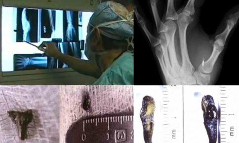 Alien-Implants-11-1000x600