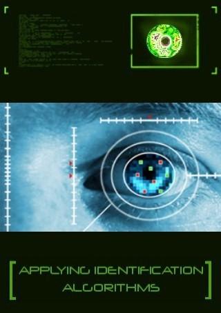 retine